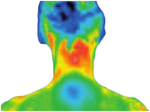thermography_neck